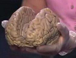 Twee helften van de hersens