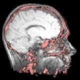 MRI scan van de hersens