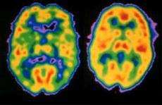 Petscan met links de hersens van iemand met schizofrenie, rechts van een gezond persoon.